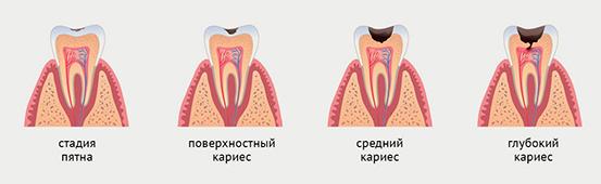 Лечение кариеса в зависимости от стадии