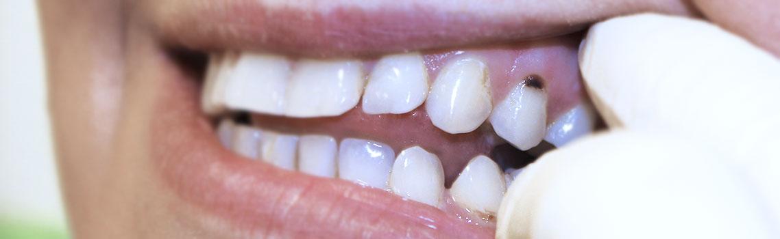Препарирование зубов при пришеечном кариесе