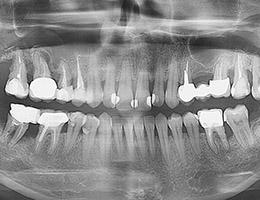 Снимок челюсти с помощью рентгена