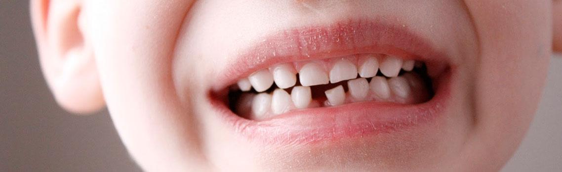 Признаки и симптомы неправильного прикуса у детей