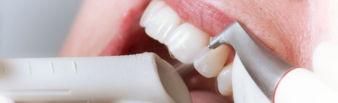 отбеливание зубов методом belle отзывы