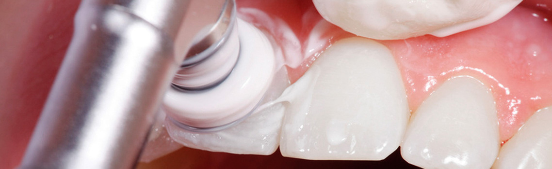 Процедура фторирования зубов