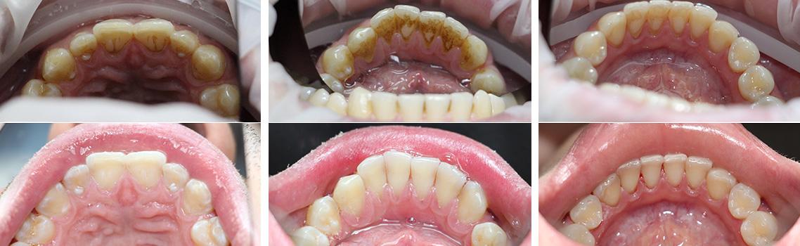 Фото до и после ультразвуковой чистки зубов