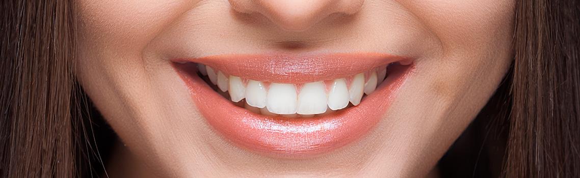 Результат глубокого фторирования зубов
