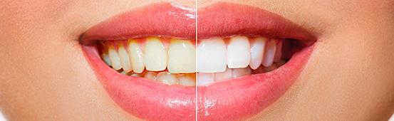 Эндодонтическое отбеливание зубов