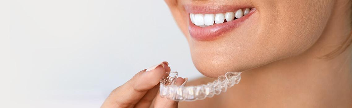 Изготовление капы для отбеливания зубов