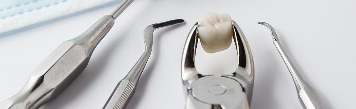 Методы удаления зубов