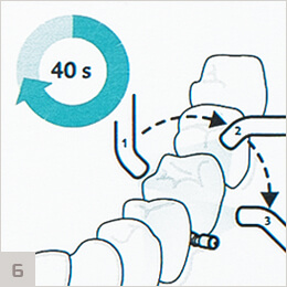 ICON - этап полимеризации