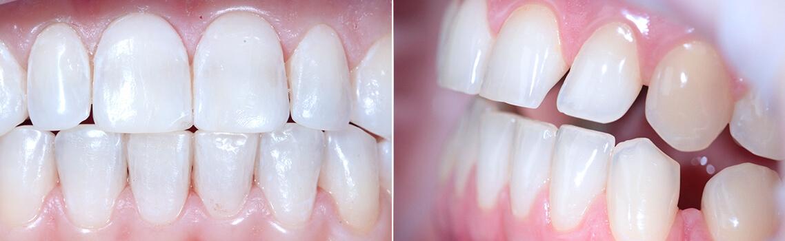 До и после чистки зубов prophyflex