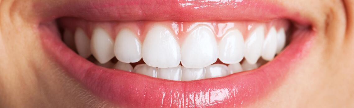 Результат после чистки зубов Prophyflex
