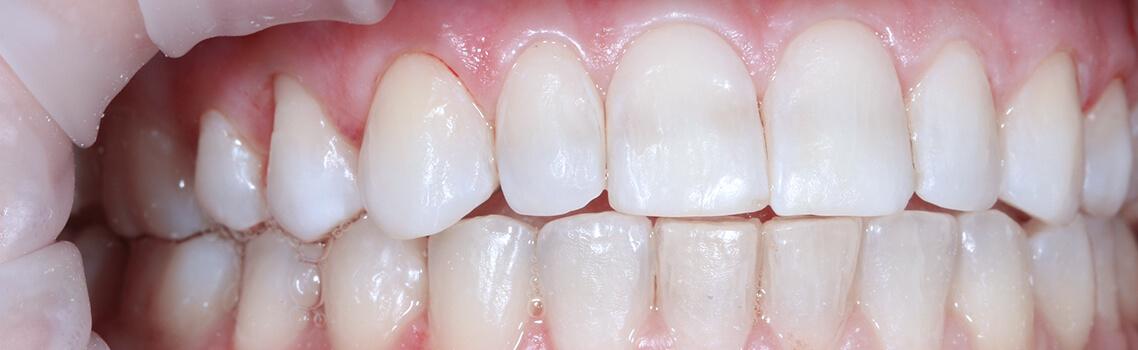 Показания для чистки зубов системой PROPHYflex