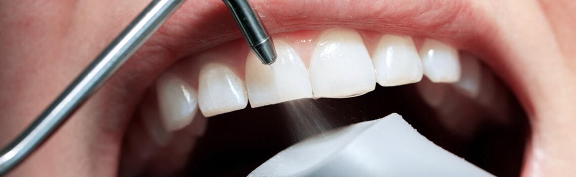 Профессиональная чистка зубов системой PROPHYflex