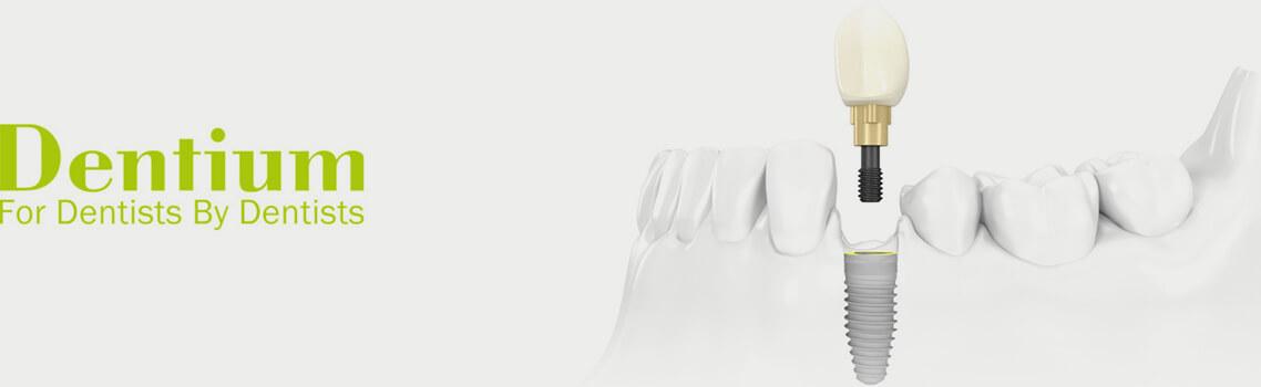 Зубные имплантаты Dentium