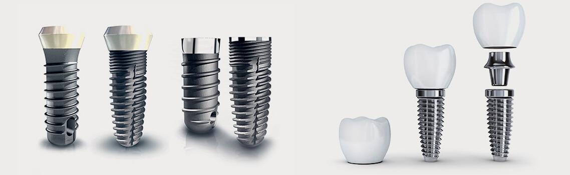 Особенности имплантатов Dentium
